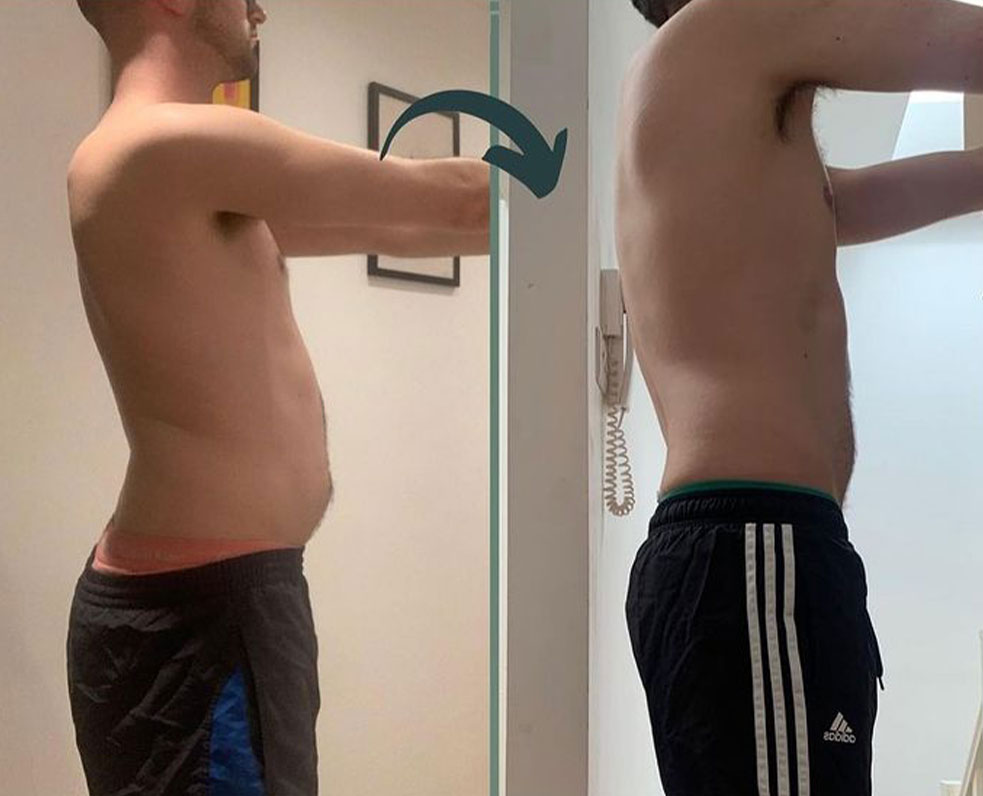 Before and after picture of a male client.