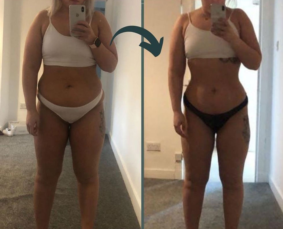 Before and after picture of a female client.